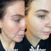 Individuelle Hautpflegeberatung inkl Beautybox