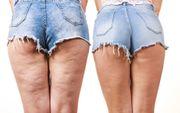 Wellness und Anti Cellulite Massage