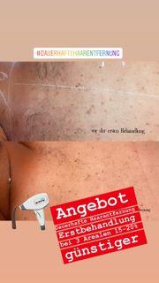 Dauerhafte Haarentfernung Hautverjüngung IPL-SHR Aquafacial