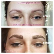 Microblading Permanent Make-up Entfernung