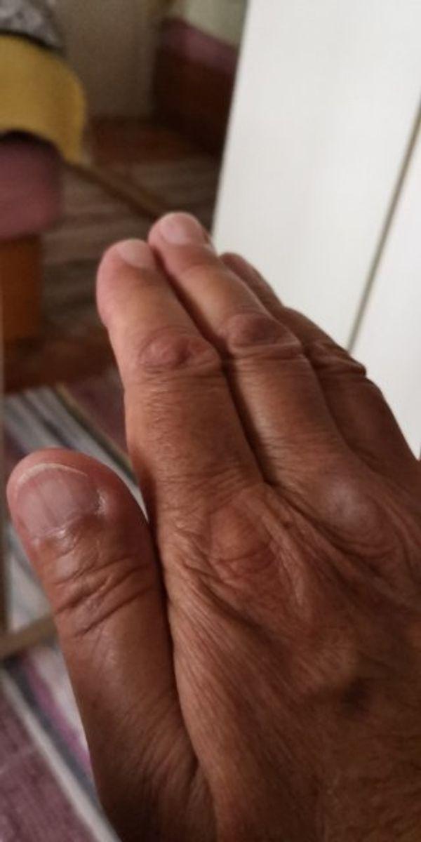 Suche Frau mit Fibromyalgie Rheuma