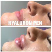Hyaluron Pen Behandlung Modell gesucht