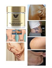 Gold Infused Anti-Cellulite Cream Concentrate