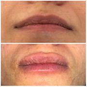 Lippenaufbau ohne Nadel