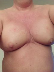 Mann mit aufgespritzten Brüsten sucht