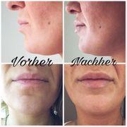 Meso Lippenkorrektur Needling BIO-BOTOX