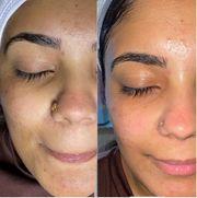 Kosmetische Gesichtsbehandlungen