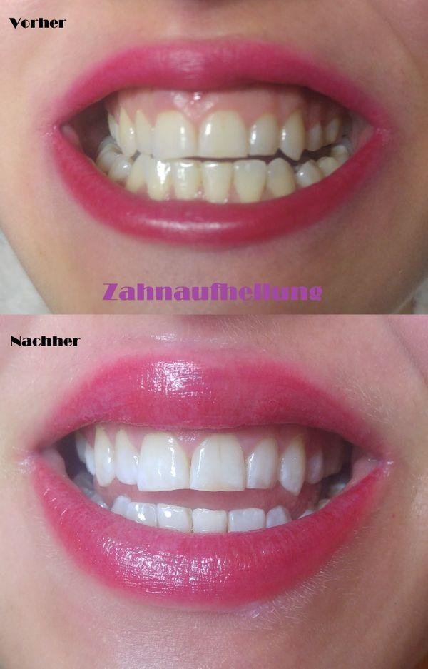 Kosmetische Zahnaufhellung Bleaching