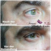 Aqua Facial Behandlung