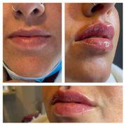 Russian Lips mit 1 ml