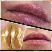 Spröde Lippen Lippenneedling hilft - speziell