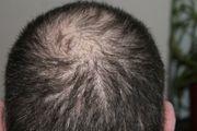 Haarausfall Haarverlust Haarkranz entgegentreten mit