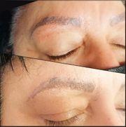 Entfernung von Permanent Make Up