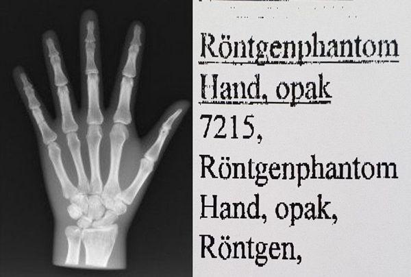 Röntgenphantom Hand opak Röntgen Test