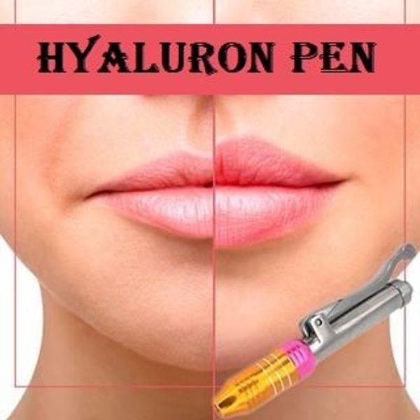 Hyaluron Pen Hyaluronsäure Lippenvolumen Faltenaufpolsterung