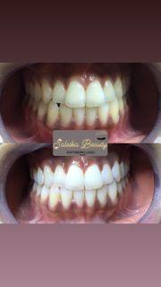Kosmetische Zahnaufhellung Zahn Bleaching