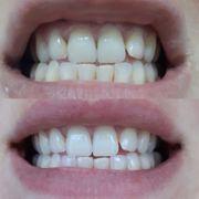 Nu Skin AP24 Whitening Fluoride