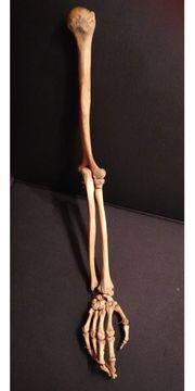 Arm Knochen Präparat - Rarität Echte