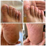 Herren Fußpflege inkl Hausbesuche
