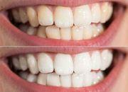 Zertifizierte Kosmetische Zahnaufhellung Zahnbleaching Schulung