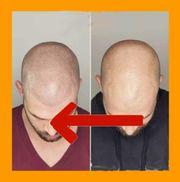 Haarpigmentierung Haarausfall