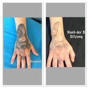 Tattooentfernung professionelle und hautschonend